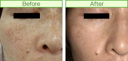 そばかす治療前と治療後の写真